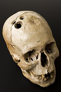 bronze_age_skull_from_jericho_palestine