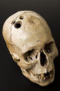 bronze_age_skull_from_jericho_palestine