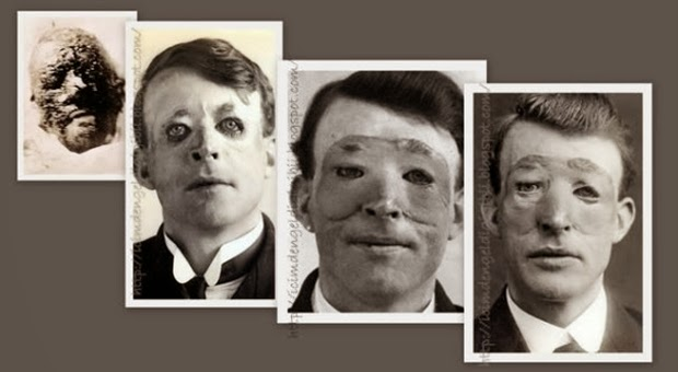 ilk-estetik-ameliyat-WalterYeo