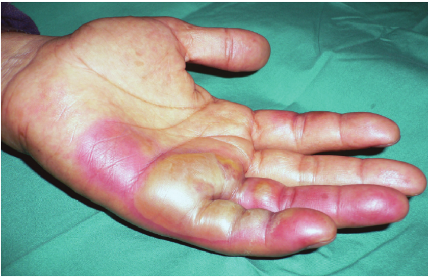 Burns-to-left-hand-after-exposure-to-radiation-source