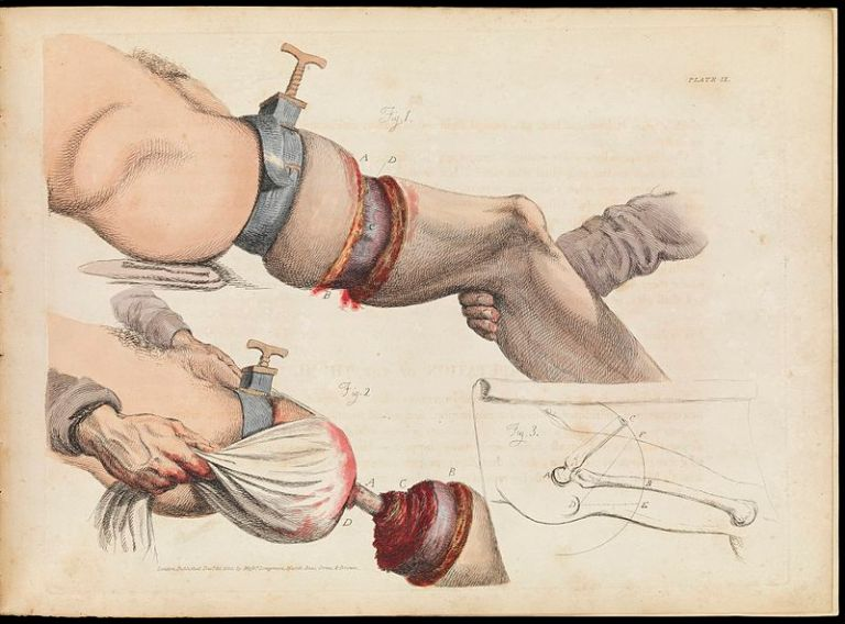 Plate_IX_illustration_of_leg_amputation_Sir_Charles_Bell_Wellcome_L0072192.jpg