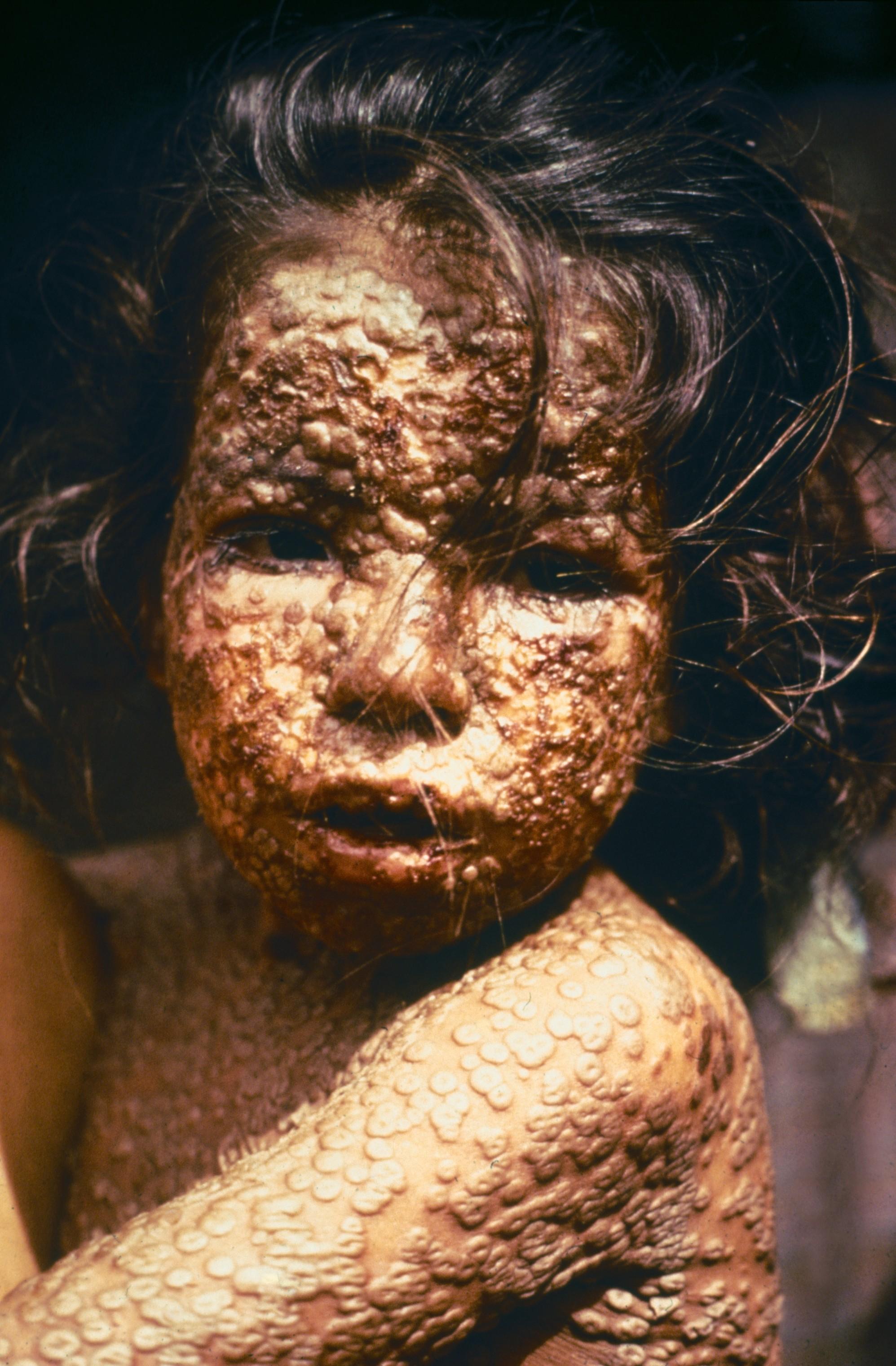 Child_with_Smallpox_Bangladesh